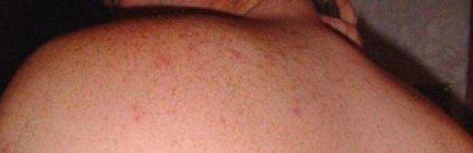 Flea bites in humans, treatment  How to treat flea bites in humans